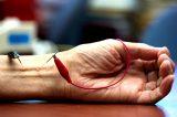 """Avanguardia dall'Università California Irvine: """"L'agopuntura riduce l'ipertensione attivando oppioidi naturali"""""""
