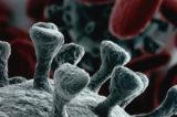 """Infezione da Covid-19. Misure estreme ma poca analisi della clinica. Dr. Giannotta: """"Diagnosi sempre tardive"""""""