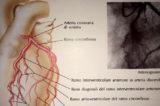 COVID-19: non solo polmonite. Anche il cuore a rischio in un paziente su cinque
